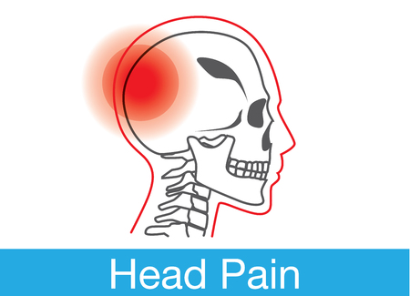head pain: Red warning sign on human skull area that meaning have head pain or injuries at skull. This illustration about symptom, disease and medical. Illustration