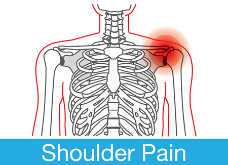 Outline of Body and bone which have shoulder pain from lifestyle. This is medical illustration Çizim