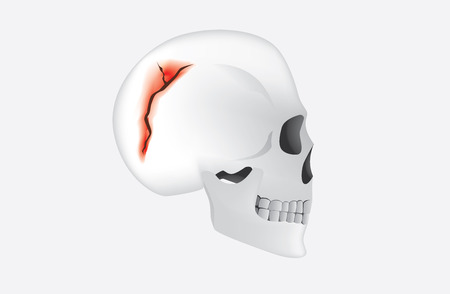 cranial: Human have any break in the cranial bone which called skull fracture. This is medical illustration.