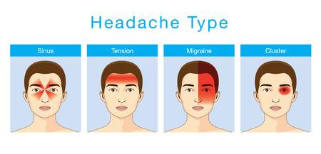 Ilustración sobre los dolores de cabeza de tipo 4 en diferentes áreas de la cabeza del paciente. Vectores
