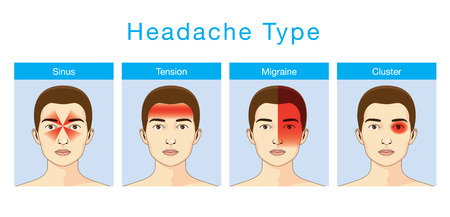 tipos: Ilustración sobre los dolores de cabeza de tipo 4 en diferentes áreas de la cabeza del paciente. Vectores