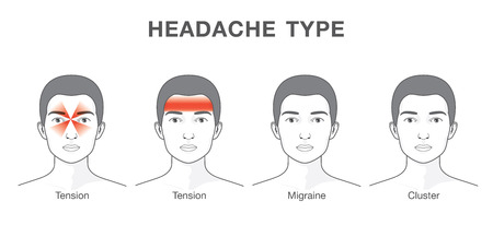 headaches: Headaches 4 type on different area of patient head.Illustration about heath care and medical