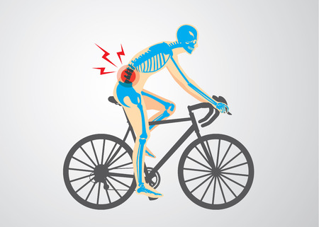 pain: Spine pain symptoms of biker from workout with cycling. Medical and sport illustration.