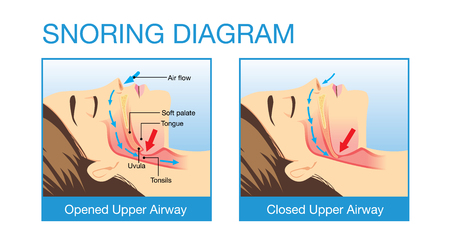 snore: Anatomy of woman while normal sleeping and have snoring. Illustration about health care and medical