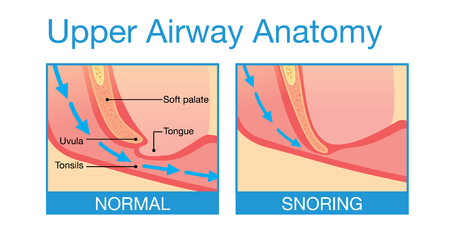 man lying down: Upper airway human anatomy in normal sleeping and have snoring.
