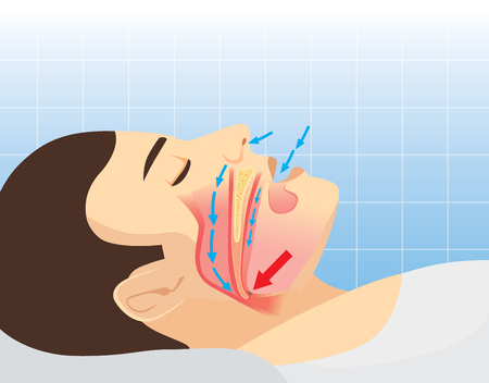 Anatomy of man while normal sleeping and have snoring. Illustration about health care and medical Vettoriali