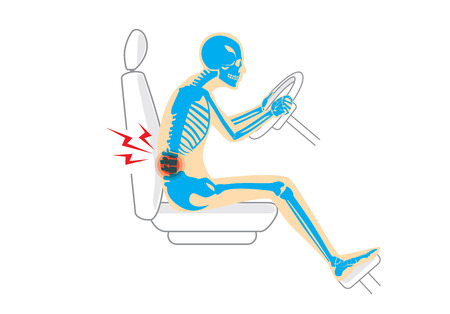 x rays: Wrong sitting position in driving make pain in back of driver. This illustration about Health care and lifestyle.