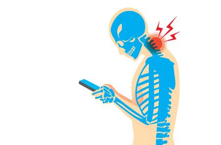 columna vertebral: Cuello del hueso y músculos tienen dolor debido a la adicción a teléfonos inteligentes y jugar mucho tiempo.