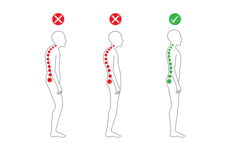 poor health: Correct alignment of human body in standing posture for good personality and healthy of spine and bone. Health care and medical illustration