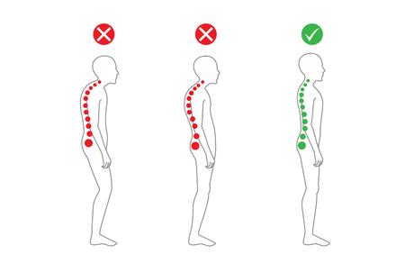 pobre: La correcta alineación del cuerpo humano en la postura de pie para una buena personalidad y saludable de la columna vertebral y los huesos. cuidado de la salud y de la ilustración médica