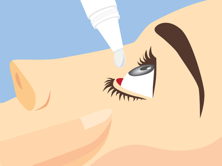 close up eye: Eye treatment with eye drops for Redness, Dry Eyes, Allergy and Eye Itching Illustration