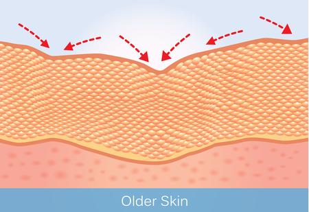 주름과 노인의 처지는 피부. 아름다움과 건강 관리에 대한이 그림.