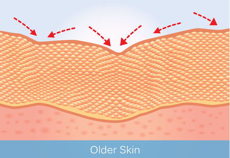 Wrinkles and sagging skin of elderly. This illustration about beauty and health care. Çizim