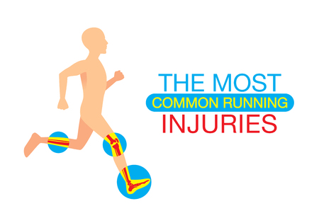Human body part common injuries form running. This illustration about heath and sport. Иллюстрация