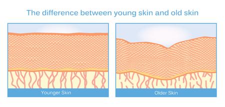Het verschil tussen een jonge huid en oude huid. Deze illustratie over huidverzorging.