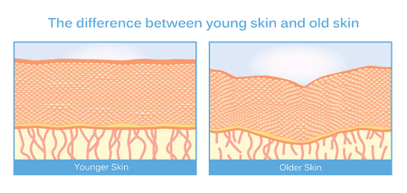cell damage: The difference between young skin and old skin. This illustration about skincare.