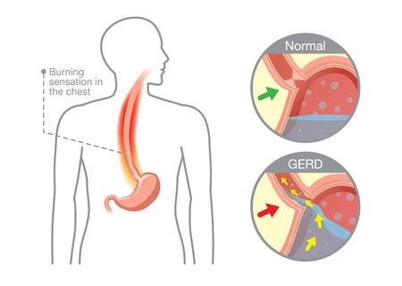 esófago: Imagen del estómago humano en el área del problema tiene ácido se regresan al esófago, lo cual es causa de la enfermedad de reflujo gastroesofágico.