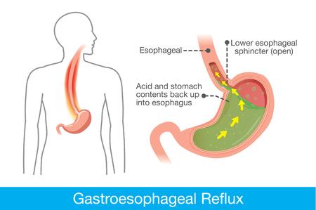 Beeld van menselijke maag in probleemgebied zure back-up in de slokdarm, die leiden tot gastro-oesofageale refluxziekte. Stock Illustratie
