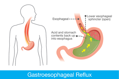 Picture of human stomach in problem area have acid back up into esophagus which is cause gastroesophageal reflux disease.