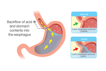 Medical illustration about acid in stomach back up into esophagus which is cause gastroesophageal reflux disease. Medical illustration.