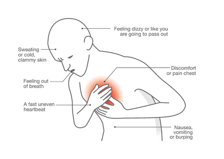 chest disease: Symptoms of heart attack disease. Medical illustration.