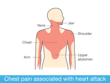 chest pain: Chest pain associated with heart attack. Medical illustration and info graphic Illustration