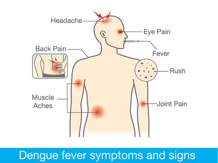 dengue fever: Diagram for health check when have dengue fever symptoms and signs.