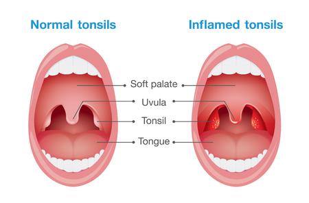 Comparación entre las amígdalas normales y amígdalas inflamadas. Esta ilustración sobre el cuidado de la salud y la medicina. Ilustración de vector