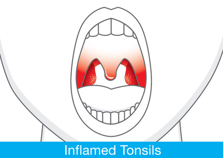 appear: Showing Inflamed tonsils by open mouth. This illustration about health and medical.