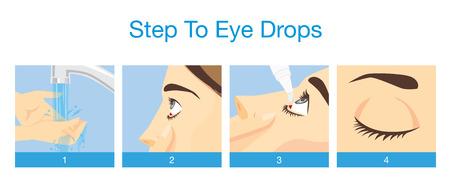 ojos: Paso para el tratamiento del ojo con gotas para los ojos enrojecimiento, ojos secos, la alergia y picazón en el ojo Vectores