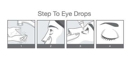 Stap in oog behandeling met oogdruppels voor Roodheid, droge ogen, Anti en Eye Jeuk Vector Illustratie