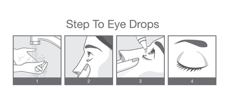woman looking down: Step to eye treatment with eye drops for Redness, Dry Eyes, Allergy and Eye Itching Illustration