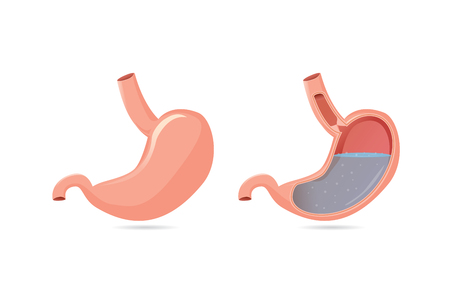 heartburn: Illustration of outside of stomach muscular and inside which can saw gastric acid. Illustration