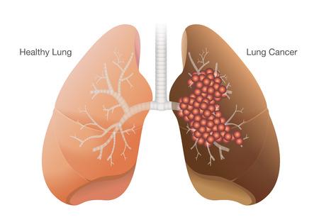 Vergelijking tussen gezonde long en kanker long op een witte achtergrond.