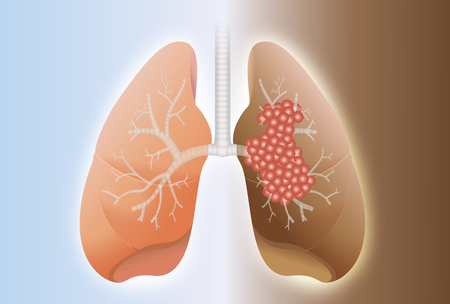 Comparison between healthy lung and cancer lung on difference background. Ilustração
