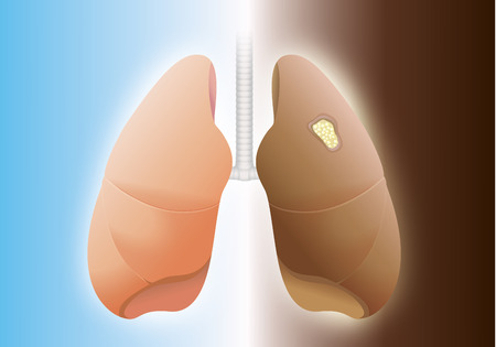 alveolus: Comparative between healthy lung and cancer lung on difference background.