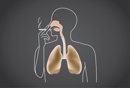 alveolus: Smoker's lung is black from tar. This illustration about medical.