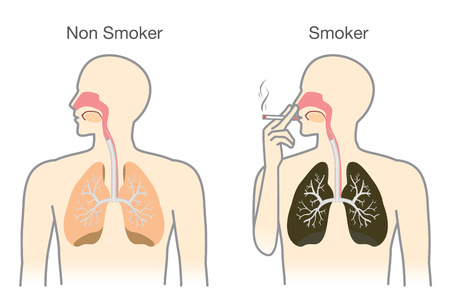 smokers: Comparison between lung of smoker and non smoker. This illustration about medical.