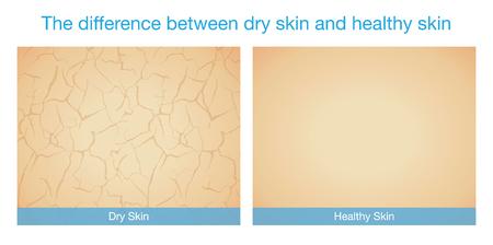 La diferencia entre la piel seca y piel sana. Esta ilustración sobre el cuidado de la piel.
