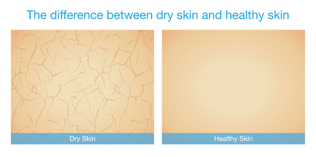dry skin: The difference between dry skin and healthy skin. This illustration about skincare. Illustration