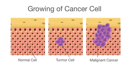Growing of cancer cells in human. Medical illustration.