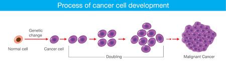 がん細胞の開発の過程。医療のイラスト。