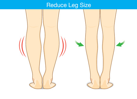 decreasing in size: Illustration of before and after reduce leg size. Illustration