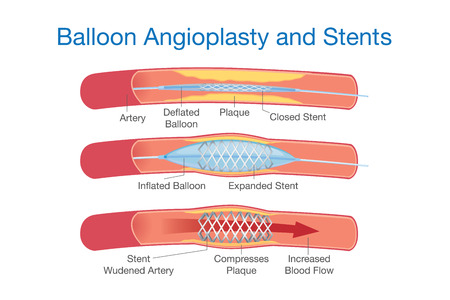 Balloon angioplasty and stents procedure for heart disease treatment. This illustration about medical. Иллюстрация