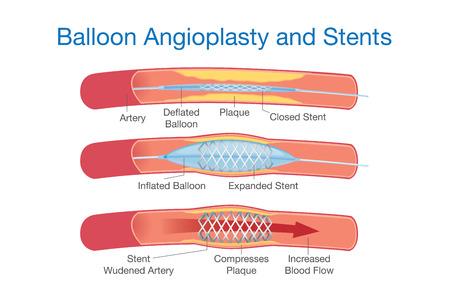 Globo procedimiento de angioplastia y stents para el tratamiento de enfermedades del corazón. Esta ilustración médica acerca.
