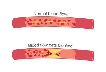 Red blood cell: El flujo sanguíneo en la aterosclerosis en las etapas normales y cuando se bloquean por graso que es causa de pecho e infarto de miocardio. Vectores