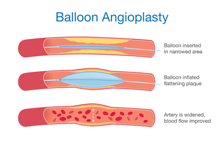 Balloon angioplasty procedure to expanded artery for blood flow improved. This illustration about medical. Illustration