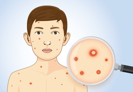 Itchy rash and red spots or blisters from chickenpox on patient skin. This illustration about medical