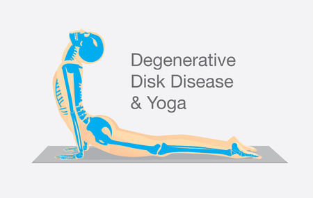 degenerative: Human bone anatomy while Yoga workout in cobra posture. This illustration about degenerative disk disease therapy with Yoga.
