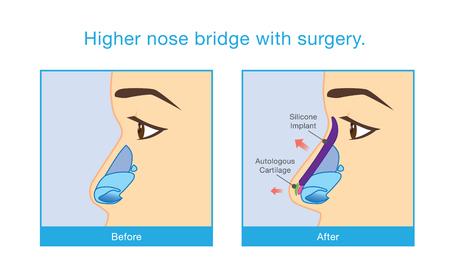 Antes y después de la cara de la mujer hace el puente de la nariz alta con cirugía.